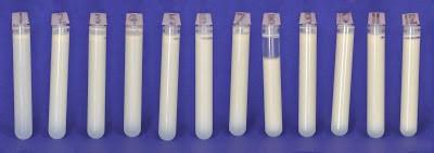 leite anterior e posterior 1