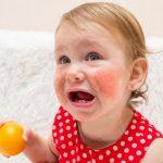 Alergia alimentar não IgE mediada – O que você precisa saber sobre isso